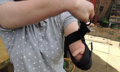 General Purpose aid being used by woman with hand limb difference for gardening.