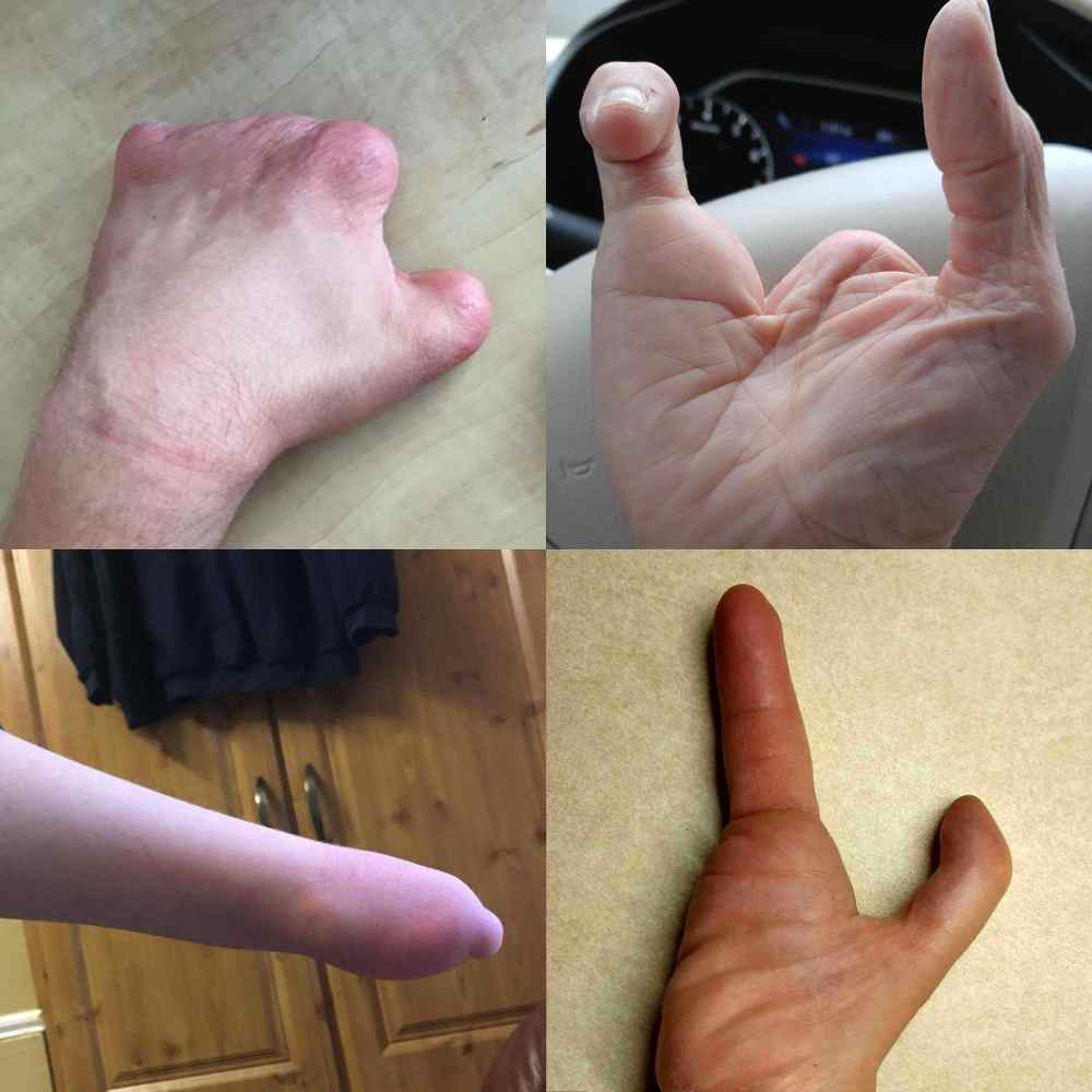 hands that the Limb Difference aid would suit - with Limb Difference affecting fingers or part of hand (amputee hands)