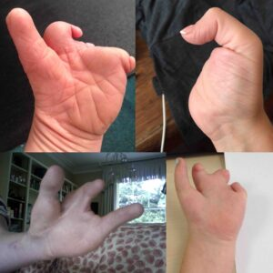 hands with limb difference effecting the hand or fingers